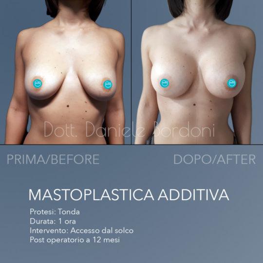Mostrare prima e dopo intervento di mastoplastica additiva