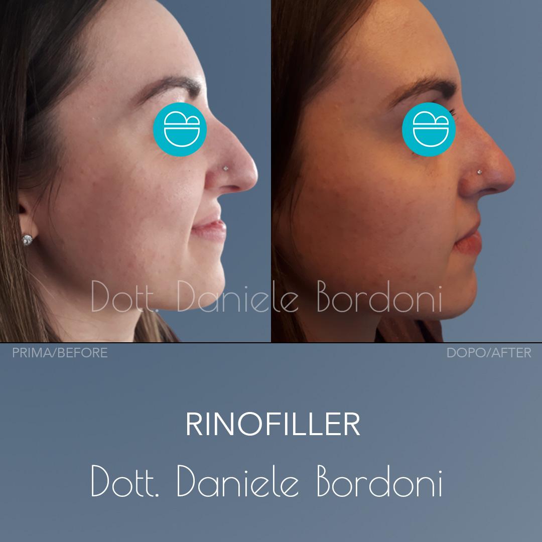 https://www.dottorbordoni.com/wp-content/uploads/2020/05/002-rinofiller-danielebordoni.jpg