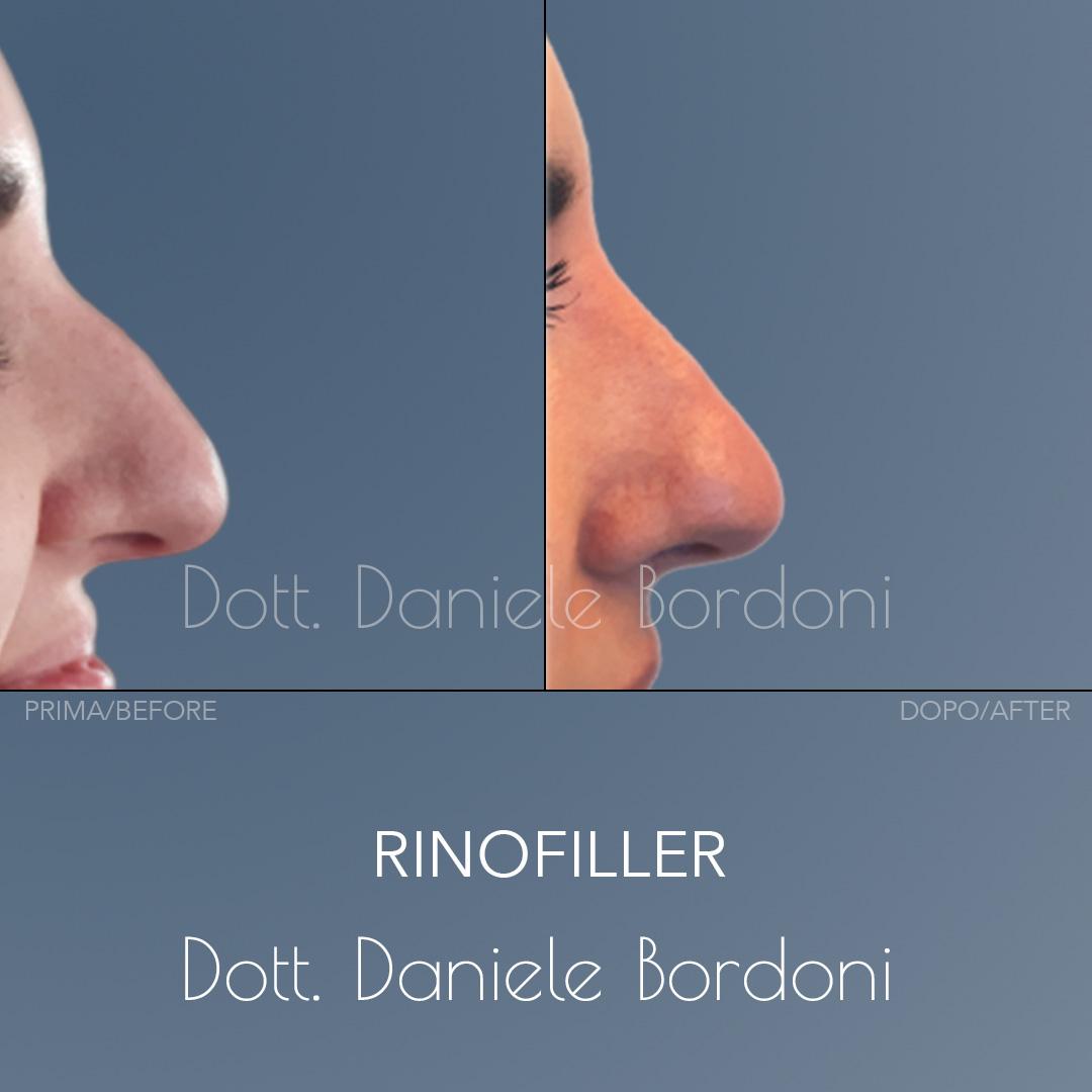 https://www.dottorbordoni.com/wp-content/uploads/2020/05/002-rinofiller-danielebordoni_4.0.jpg
